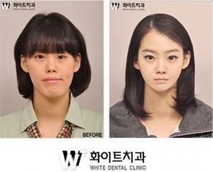 Южная Корея активно укрепляет свои позиции на рынке услуг эстетической хирургии